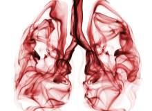 Akciğer Nodülü Nedir?