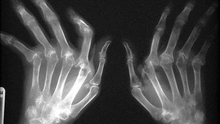 Romatoid Artrit Nedir Ve Belirtileri Nelerdir?