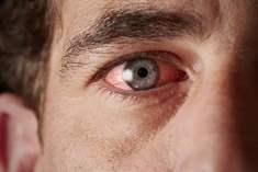 Göz ve Ağız Kuruluğu Belirtileri