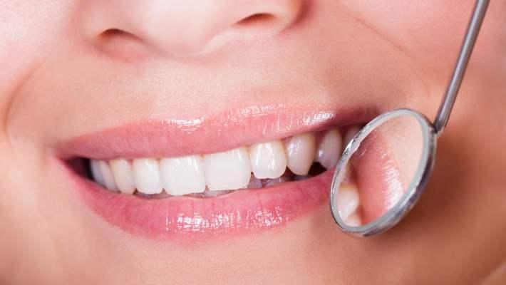 Sarı Dişleri Önleyen Gıdalar
