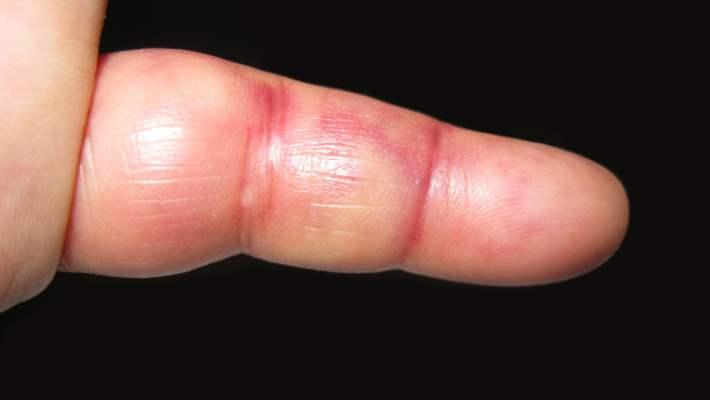 Hayvan Isırıklarından Sonra Parmaklarda Şişme