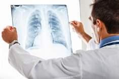 Akciğerler ve Kalsiyum