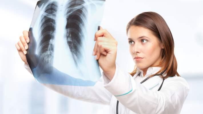 Akciğerde Nodül Sebepleri