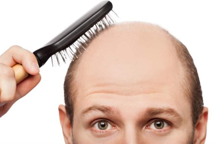 Testosteron Eksikliği ve Saç Kaybı