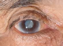 Katarakt Ameliyatı: Yakından Bir Bakış