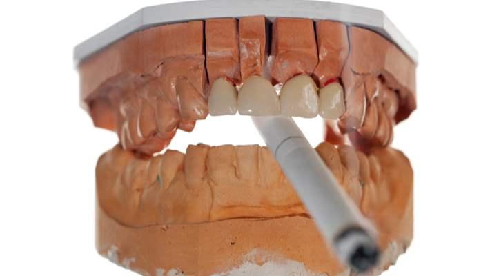 Sigara kullanımı ve diş eti sağlığımız