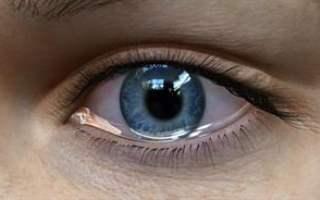 Göz Sulanması ve Glüten İntoleransı