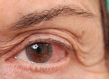 Alzheimer Hastalığında Görme Problemleri