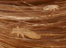 Saç Biti İçin Neem Yağı