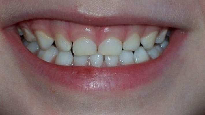 Gün İçinde Çocuklarda Diş Gıcırdatması