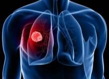 Akciğer Kanserine Karşı Vitaminler