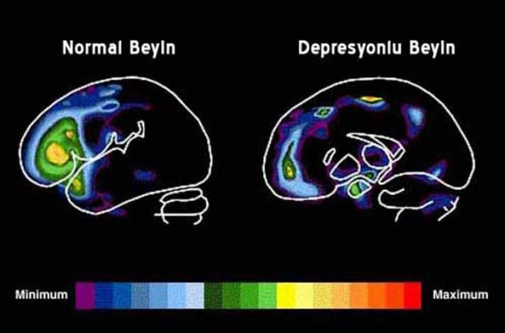 Depresyon: Nedir?