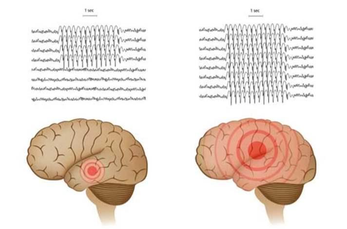 Epilepsi Nedir?