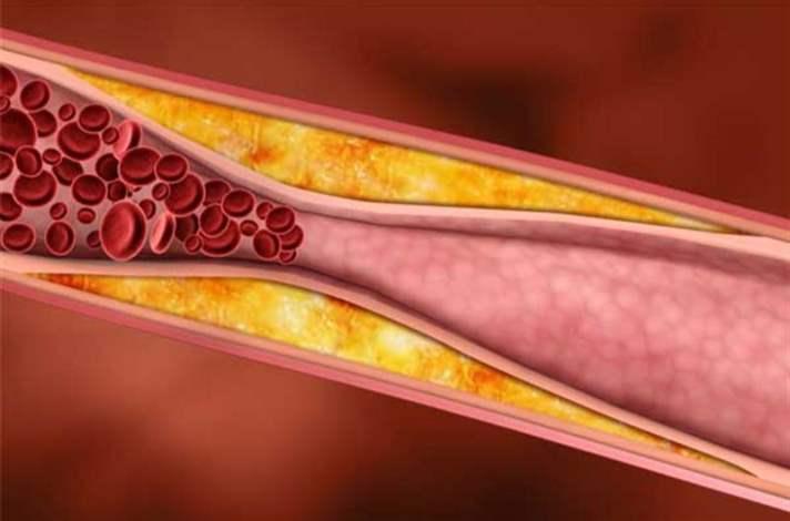 Kandaki Kolesterol Seviyesinin Yüksekliği