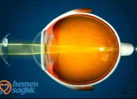 Astigmatizm ve Kontakt Lens