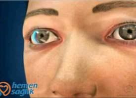 Göze Kaçan Tozların Temizlenmesi (Kontakt Lens)