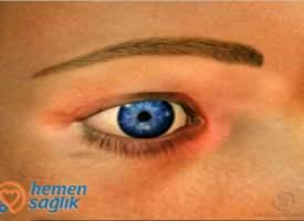 Renkli kontakt lenslerle ilgili video