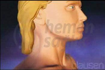 Çene Altı Yağ Aldırma (Çene Liposakşın/Liposuction)