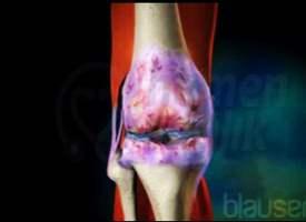 Eklem Kireçlenmesi (Osteoartrit)