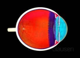 Göz Tansiyonu (Glokom)