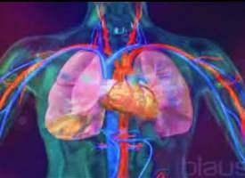 Kalp-Akciğer Makinesi