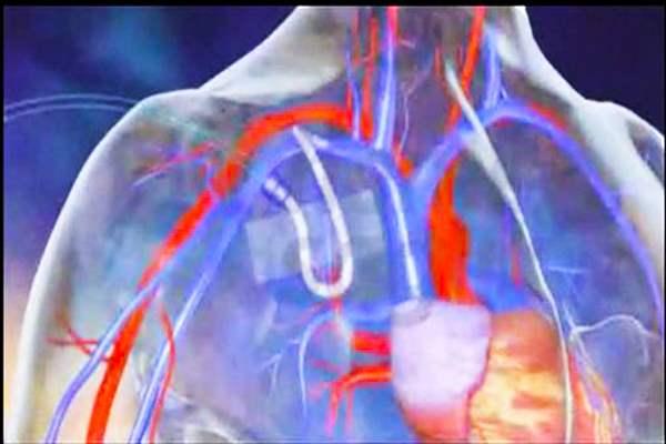 Katarakt ameliyatı nasıl yapılır (Video)
