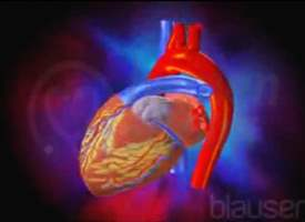 Konjenital Kalp Bozuklukları
