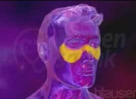 Lupus (Sistematik Lupus Eritematozus)