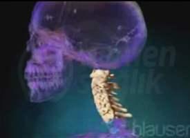 Servikal Omurga Anatomisi