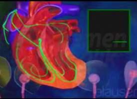 Yavaş Kalp Atımı (Bradikardi)
