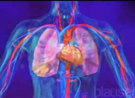 Yüksek (Pulmoner) Hipertansiyon