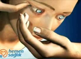 Kontakt Lensin Çıkarılması